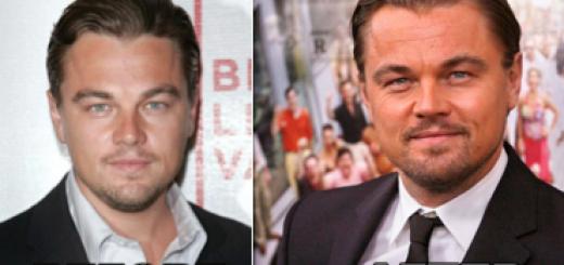 Leonardo DiCaprio Plastic Surgery Before And After Photos
