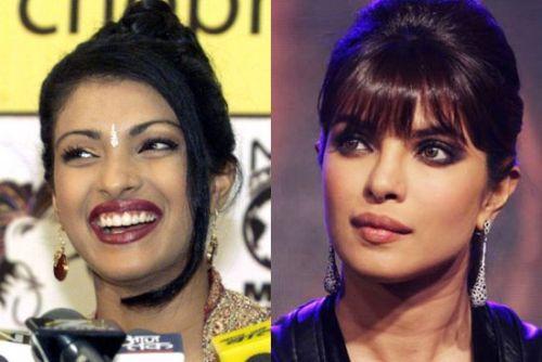 priyanka chopra plastic surgery before and after photo