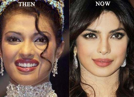 priyanka plastic surgery before and after photos