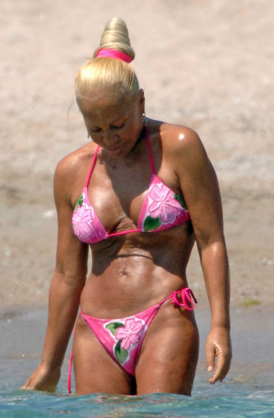 Donatella-Versace-12-Famous-Celebrities-With-Worst-Boob-Jobs-Ever