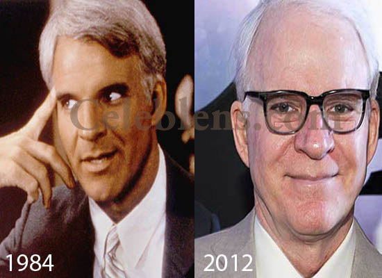 Steve Martin Plastic Surgery Before After Pictures