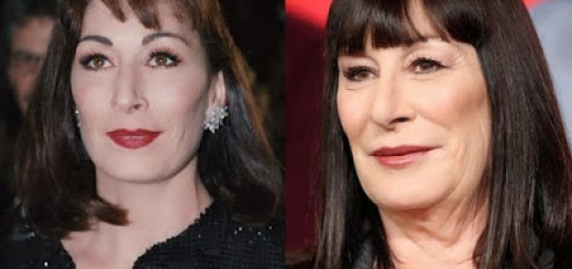 angelica huston plastic surgery gone wrong before after photos