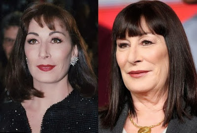 Angelica Huston Plastic Surgery Before And After Photos