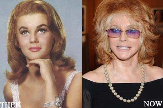 ann margret plastic surgery before after photos