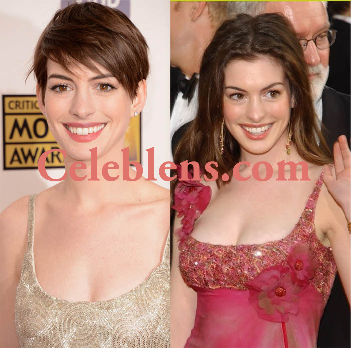 anne hathway plastic surgery before and after photos breasts implants