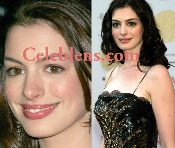 anne hathway plastic surgery before and after photos lips augmentation