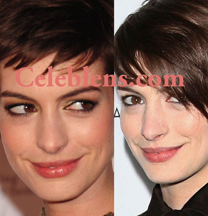 anne hathway plastic surgery before and after photos nose job