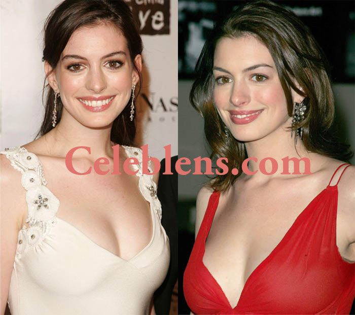 anne hathway plastic surgery before and after photos