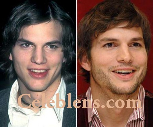 aston kutcher plastic surgery before after photos