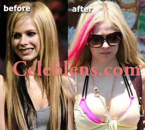 avril lavigne plastic surgery before and after photos breasts implants