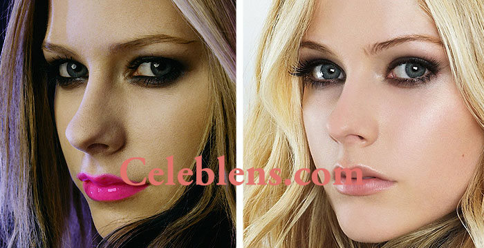 avril lavigne plastic surgery before and after photos nose job