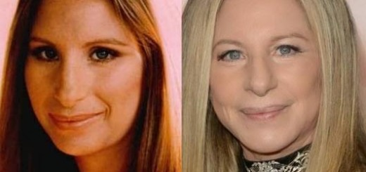 barbra streisand plastic surgery nose job before and after photos