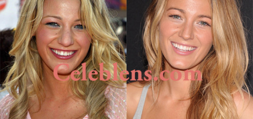 blake lively plastic surgery nose job before and after photos