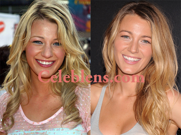 Blake Lively Plastic Surgery Before And After Photos Blake Lively Nose