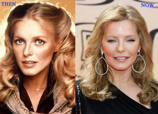 cheryl ladd plastic surgery before after photos