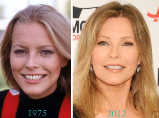 cheryl ladd plastic surgery nose job facelift eyelid surgery photos