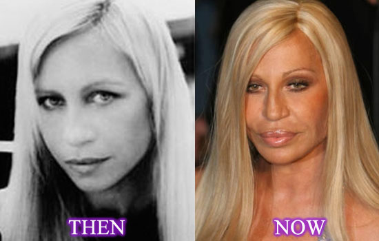 donatella versace plastic surgery before after photos