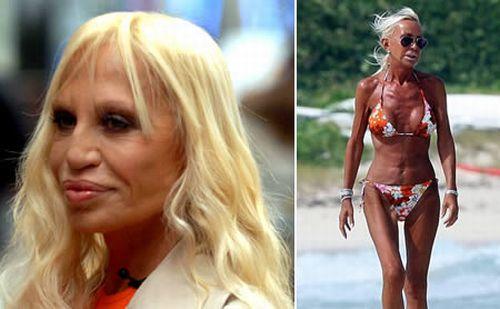 Donatella Versace Plastic Surgery Nose Job, Face Lift, Lip Augmentation
