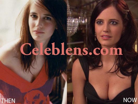 eva green plastic surgery breasts implants photos