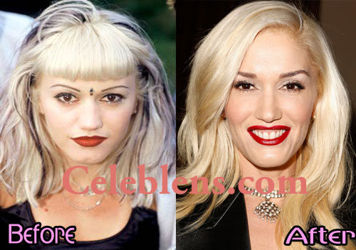 gwen stefani plastic surgery before and after photos nose job