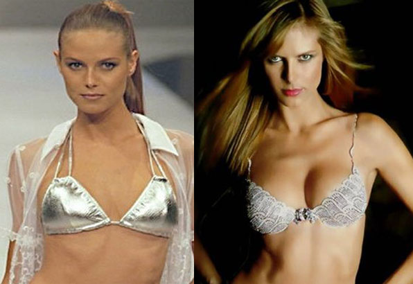 heidi klum breast implant before and after photos