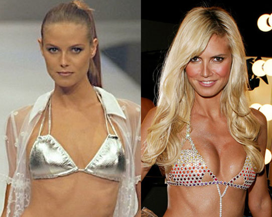 heidi klum breast implants before and after photos