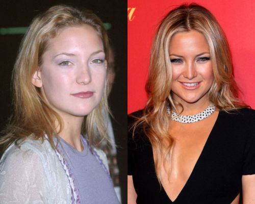 kate hudson nose job before and after photos