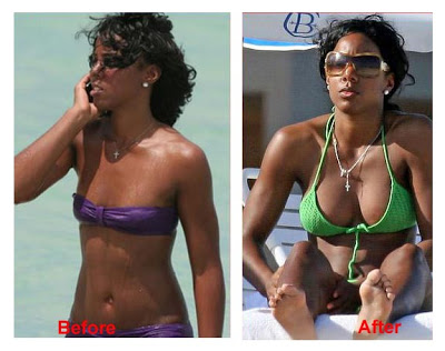 kelly rowland breast implants plastic surgery