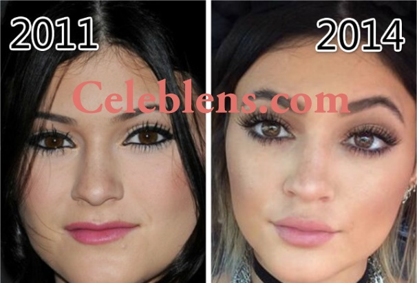 kylie jenner plastic surgery before and after photos lips job