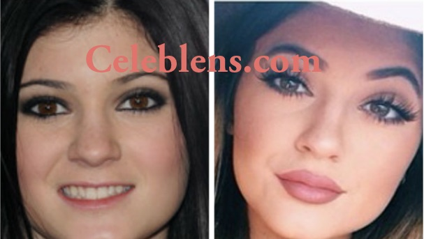 kylie jenner plastic surgery before and after photos nose job