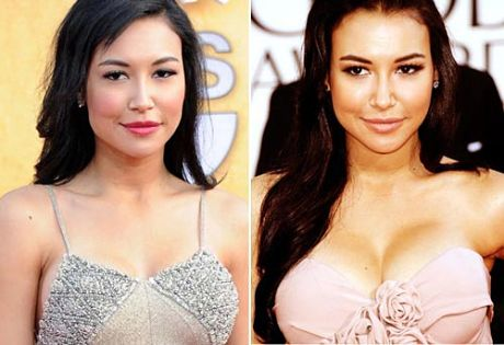 naya rivera plastic surgery dermal fillers before after photos