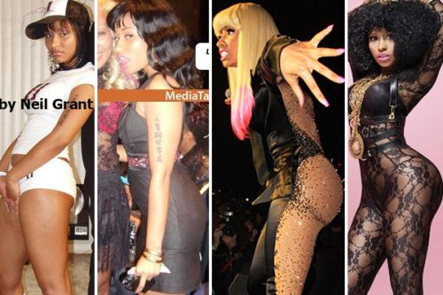 nicki minaj butt implants before and after photos