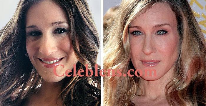 sarah jessica parker plastic surgery before after photos nose job