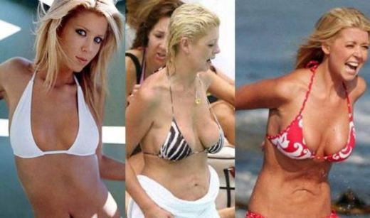 tara reid plastic surgery breast implants before after photos