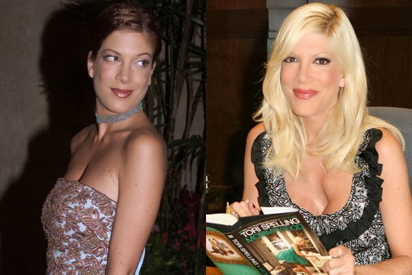 tori spelling plastic surgery breasts augmentation before after photos