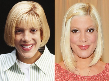 tori spelling plastic surgery nose job before after photos