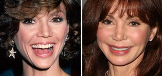victoria principal face lift plastic surgery before after photos