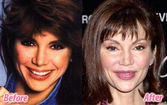 victoria principal plastic surgery before and after photos