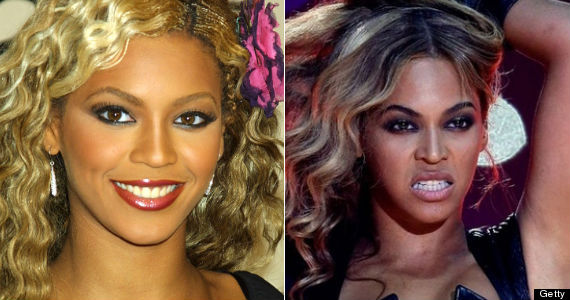 Beyonce Knowles nose job, beyonce rhinoplasty