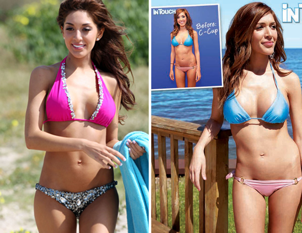 Farrah Abraham Plastic Surgery Before And After Photos, Farrah Abraham Plastic Surgey, Farrah Abraham Plastic Surgery breast implants, chin implants, lip injections1