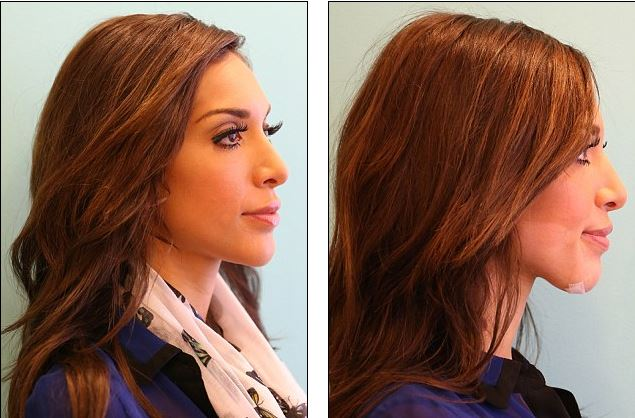 Farrah Abraham Plastic Surgery Before And After Photos, Farrah Abraham Plastic Surgey, Farrah Abraham Plastic Surgery breast implants, chin implants, lip injections4