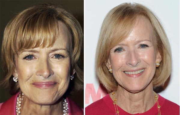 Young Celebrities With Wrinkles Judy Woodruff Plastic ...