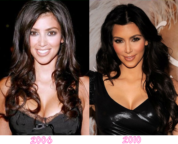 Kim Kardashian Plastic Surgery Before And After Photos, Kim Kardashian Plastic Surgery, Kim Kardashian butt implants, breast implants, nose job, liposuction, botox2