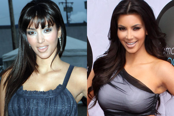 Kim Kardashian Plastic Surgery Before And After Photos, Kim Kardashian Plastic Surgery, Kim Kardashian butt implants, breast implants, nose job, liposuction, botox3