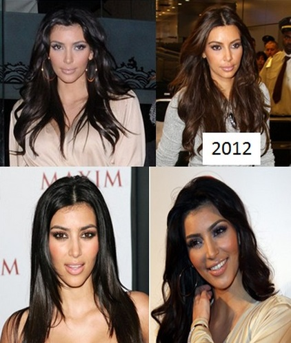 Kim_Kardashian_cosmetic_surgery5