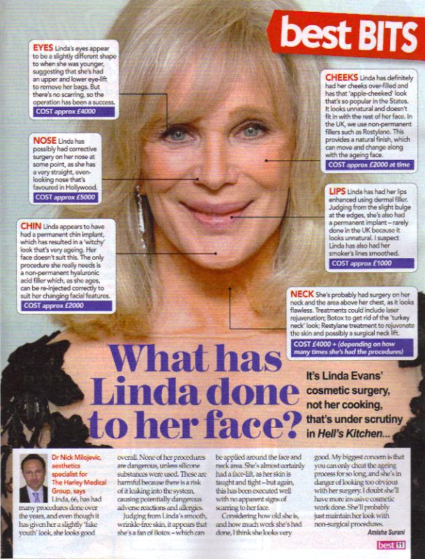Linda Evans plastic surgery, Linda Evans plastic surgery before after photos, Linda Evans plastic surgery lip augmentation, Linda Evans plastic surgery nose job, Linda Evans plastic surgery eyelid surgery