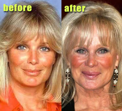 Linda Evans plastic surgery, Linda Evans plastic surgery before after photos, Linda Evans plastic surgery lip augmentation, Linda Evans plastic surgery nose job, Linda Evans plastic surgery eyelid surgery1
