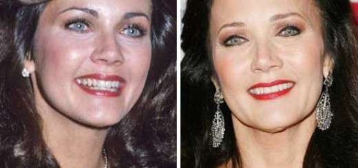 Lynda Carter plastic surgery, Lynda Carter plastic surgery before and after photos, Lynda Carter cosmetic surgery, Lynda Carter plastic surgery botox, Lynda Carter plastic surgery facelift1