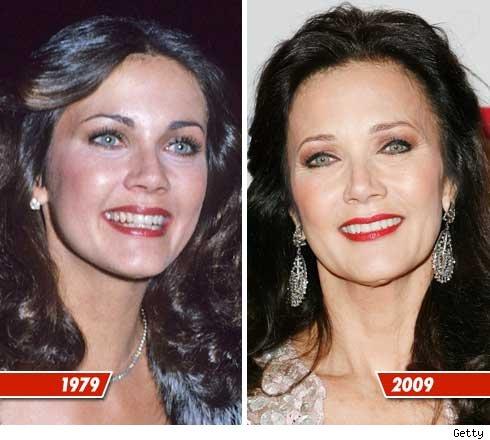 Lynda Carter plastic surgery, Lynda Carter plastic surgery before and after photos, Lynda Carter cosmetic surgery, Lynda Carter plastic surgery botox, Lynda Carter plastic surgery facelift1