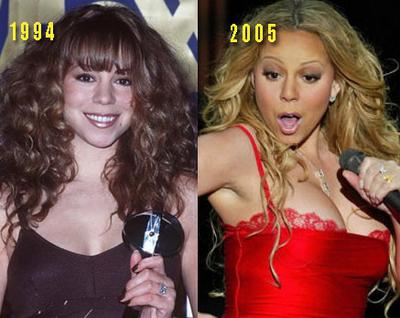 Mariah Carey Plastic Surgery Before And After Photos, Mariah Carey Plastic Surgery breast augmentation, Mariah Carey Plastic Surgery nose job, Mariah Carey Plastic Surgery liposuction